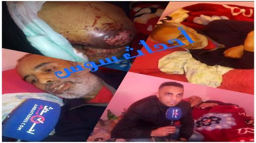 بالفيديو .. سعيد مواطن من أكادير يناشد وزير الصحة راه الدود كيأكلني وجراو عليا من السبيطار