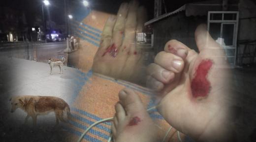 نجاة مواطن من هجوم كلاب ضالة بجماعة تمسية